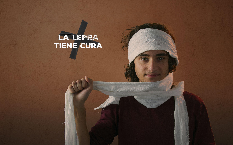 La lepra tiene cura